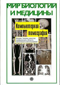 Компьютерная томография. Основы, техника, качество изображений и области клинического использования