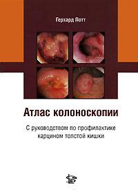 Атлас колоноскопии с руководством по профилактике карцином толстой кишки