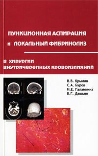 Пункционная аспирация и локальный фибринолиз в хирургии внутричерепных кровоизлияний
