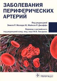 Заболевания периферических артерий