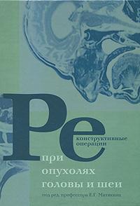 Реконструктивные операции при опухолях головы и шеи