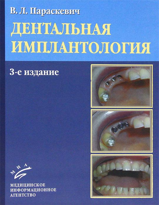 Дентальная имплантология