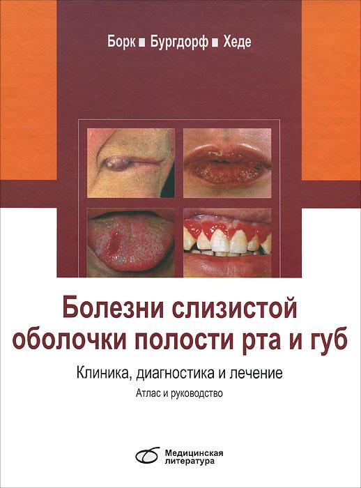 Болезни слизистой оболочки полости рта и губ. Клиника. Диагностика и лечение. Атлас и руководство