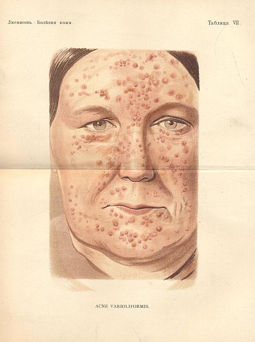 Болезни кожи. Руководство для врачей и студентов