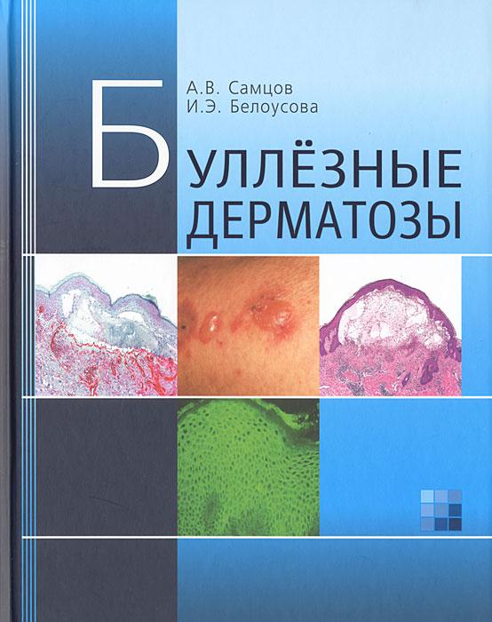 Буллезные дерматозы