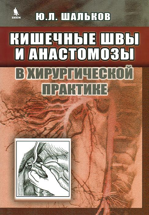 Кишечные швы и анастомозы в хирургической практике