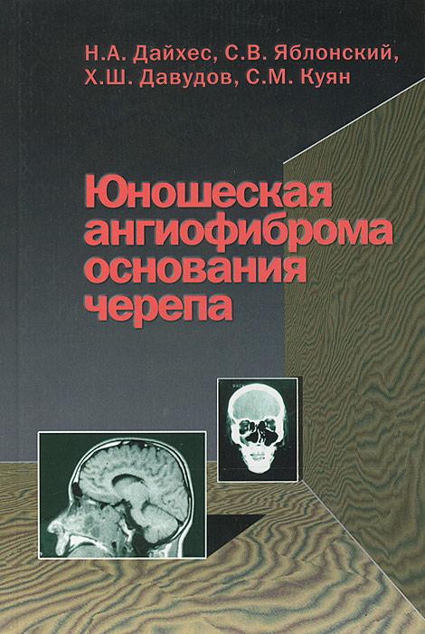 Юношеская ангиофиброма основания черепа
