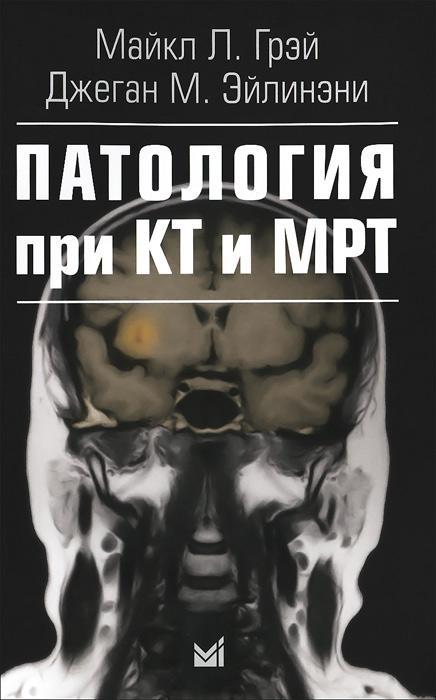 Патология при КТ и МРТ