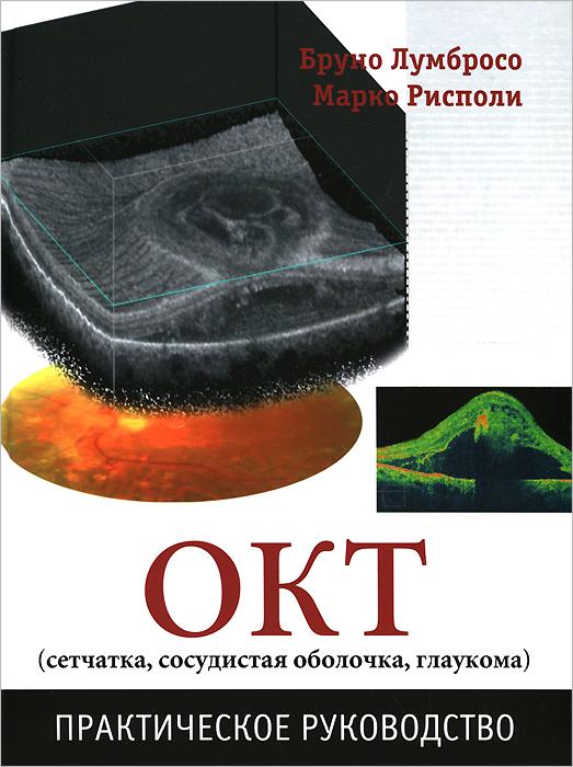 ОКТ (сетчатка, сосудистая оболочка, глаукома). Практическое руководство
