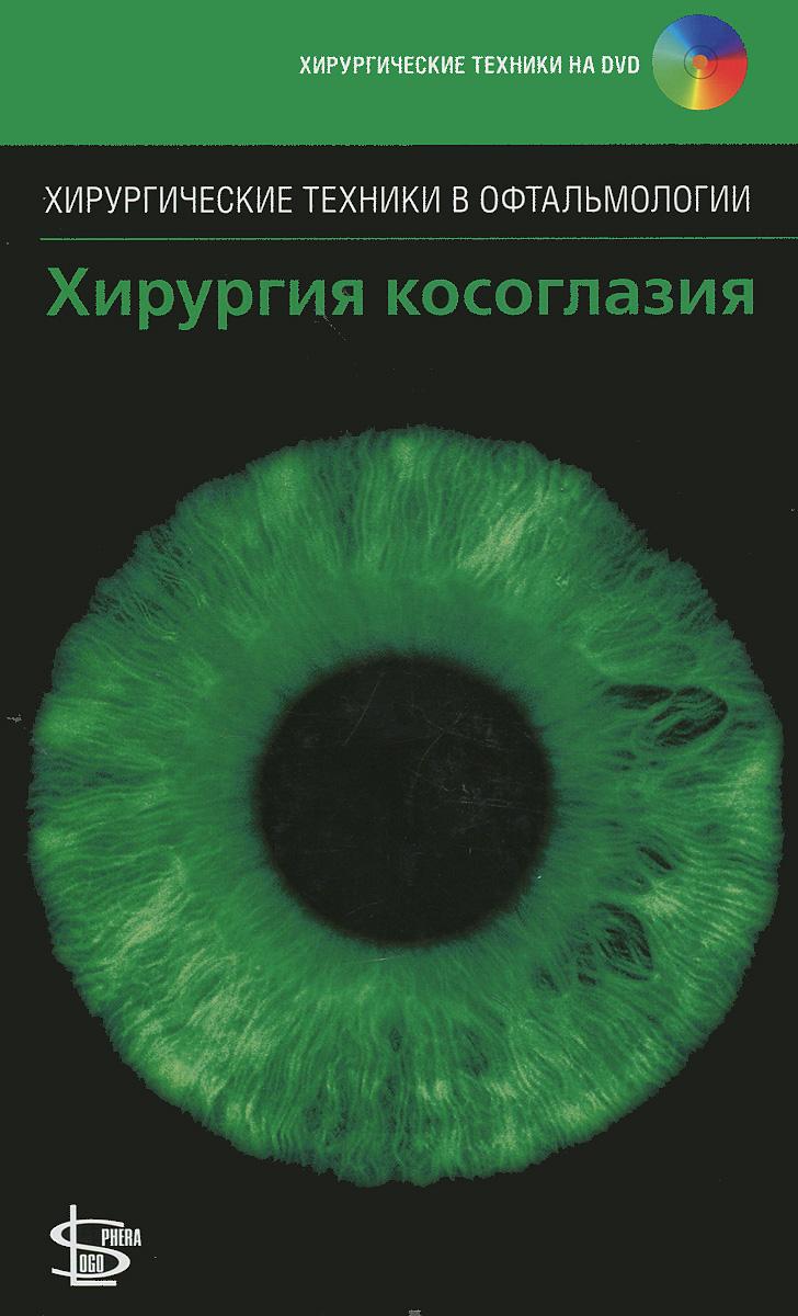 Хирургия косоглазия (+ DVD-ROM)
