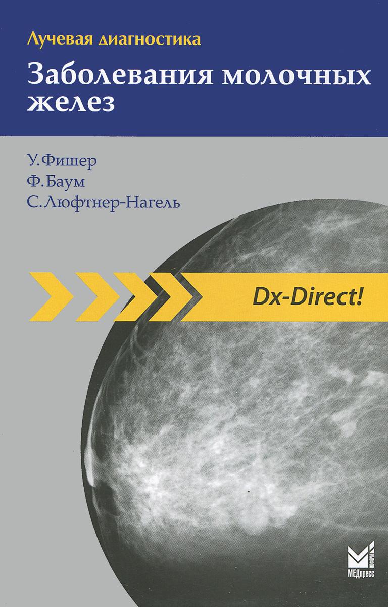 Лучевая диагностика. Заболевания молочных желез