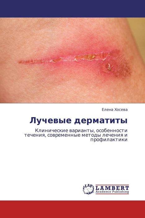 Лучевые дерматиты