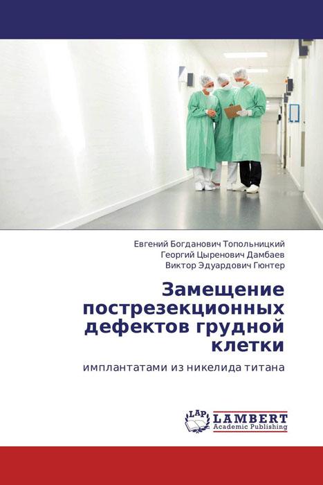 Замещение пострезекционных дефектов грудной клетки