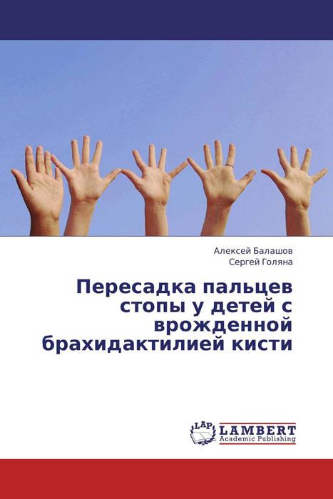 Пересадка пальцев стопы у детей с врожденной брахидактилией кисти