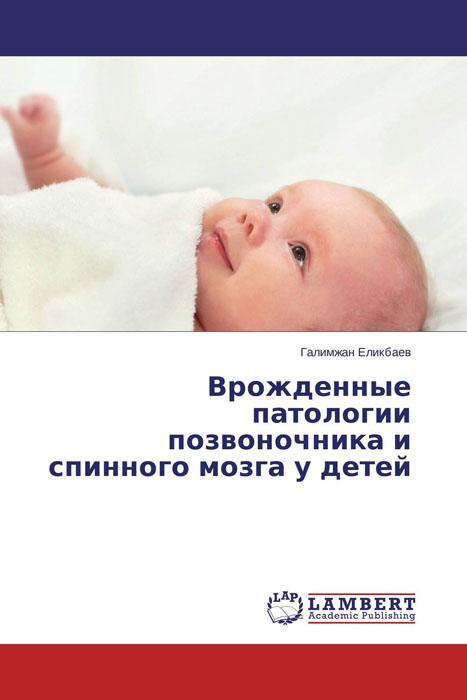Врожденные патологии позвоночника и спинного мозга у детей