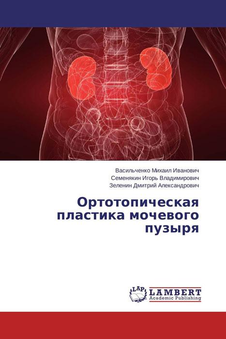 Ортотопическая пластика мочевого пузыря