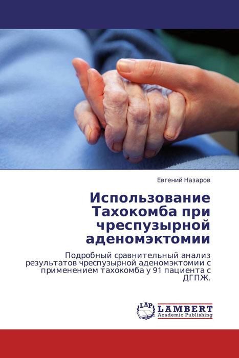 Использование Тахокомба при чреспузырной аденомэктомии