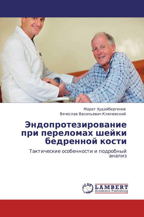 Эндопротезирование при переломах шейки бедренной кости