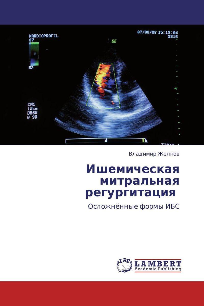Ишемическая митральная регургитация