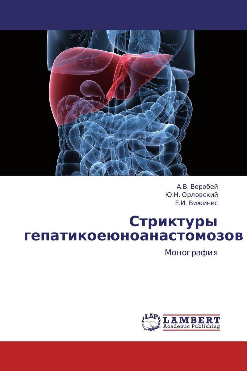 Стриктуры гепатикоеюноанастомозов