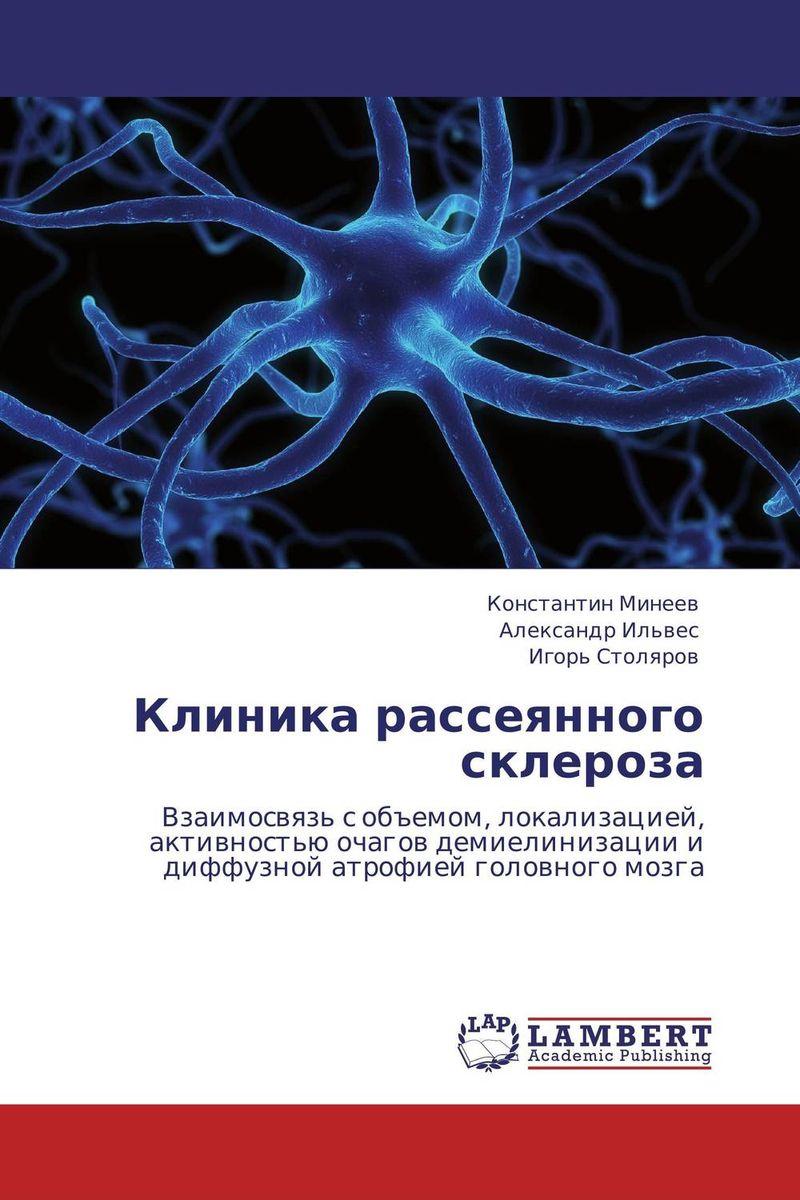 Клиника рассеянного склероза
