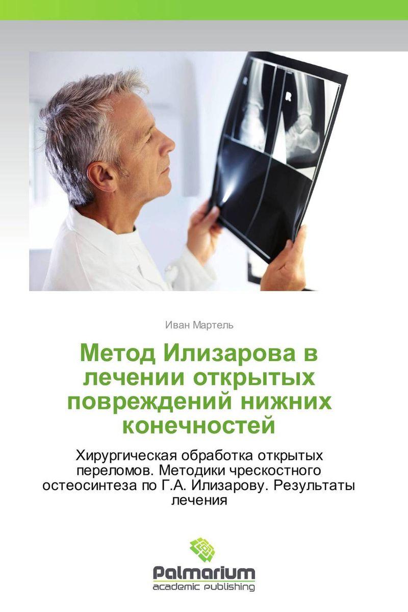 Mетод Илизарова в лечении открытых повреждений нижних конечностей