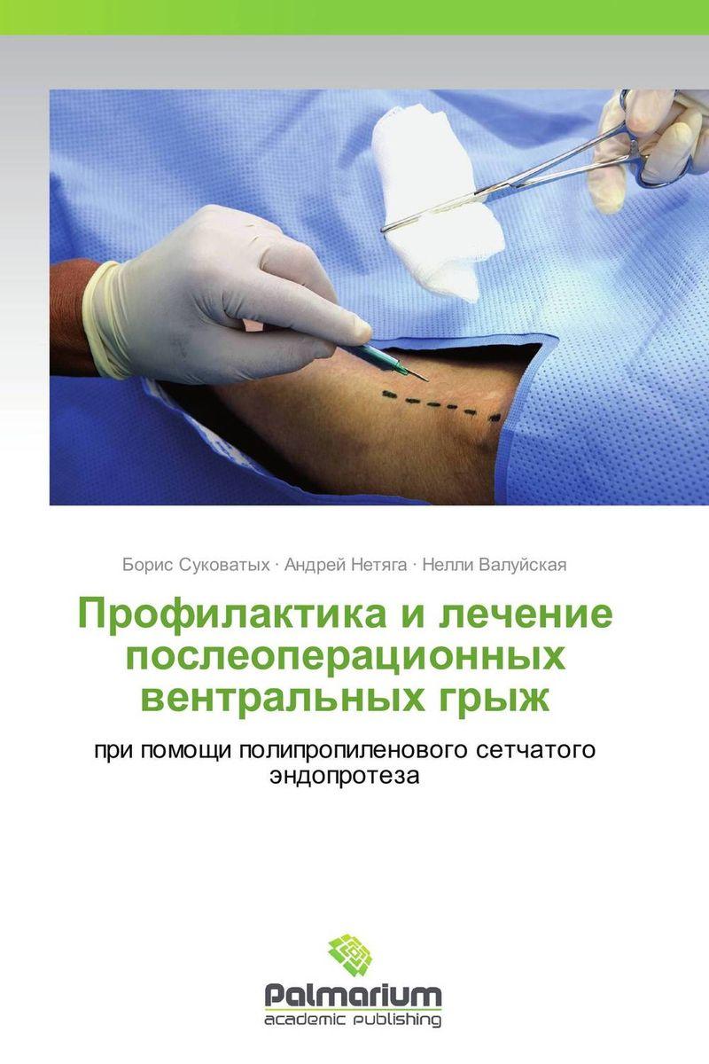 Профилактика и лечение послеоперационных вентральных грыж