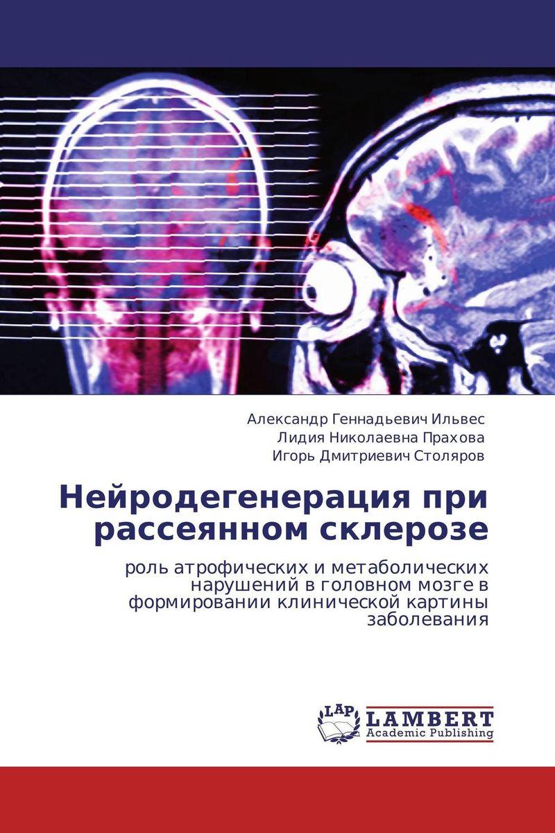 Нейродегенерация при рассеянном склерозе