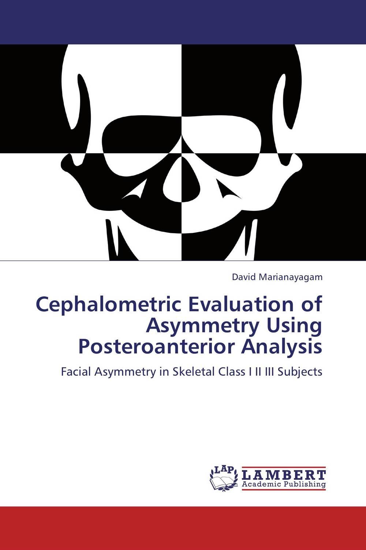 Cephalometric Evaluation of Asymmetry Using Posteroanterior Analysis