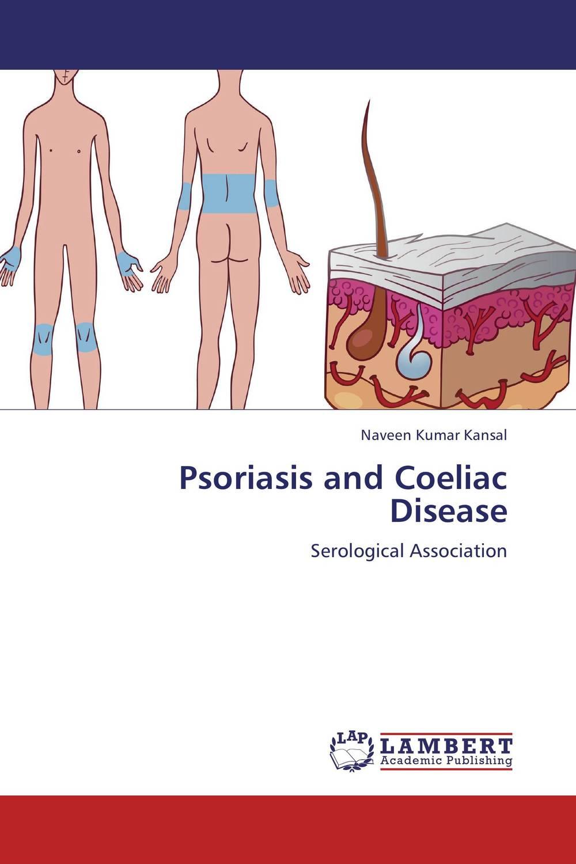 Psoriasis and Coeliac Disease