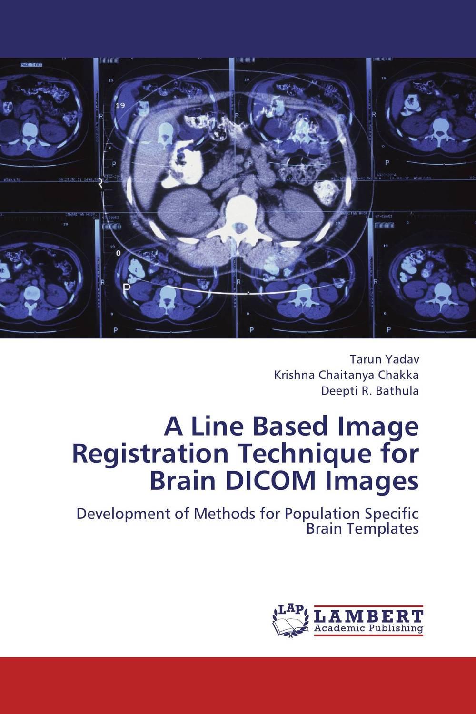 A Line Based Image Registration Technique for Brain DICOM Images