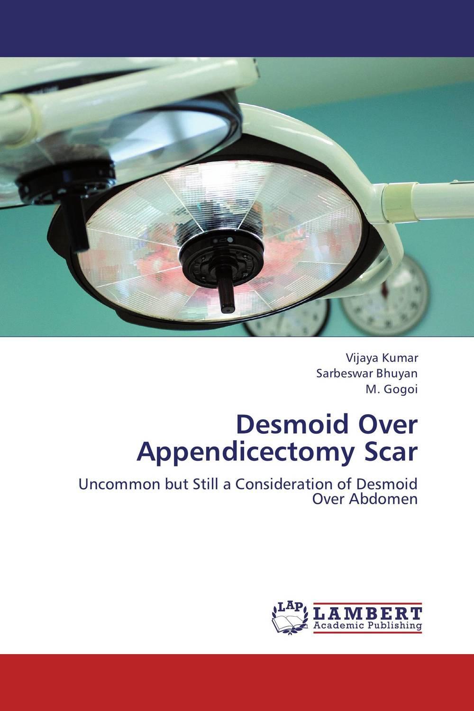 Desmoid Over Appendicectomy Scar
