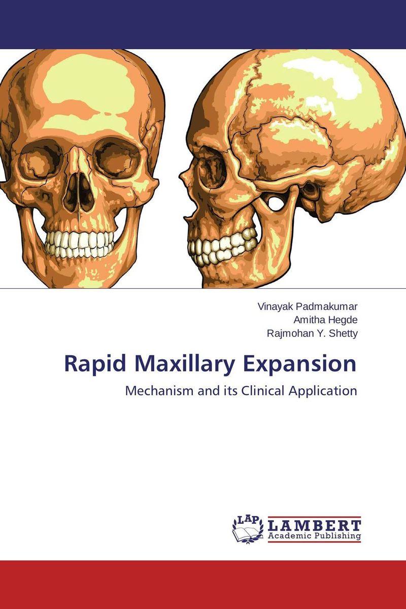 Rapid Maxillary Expansion
