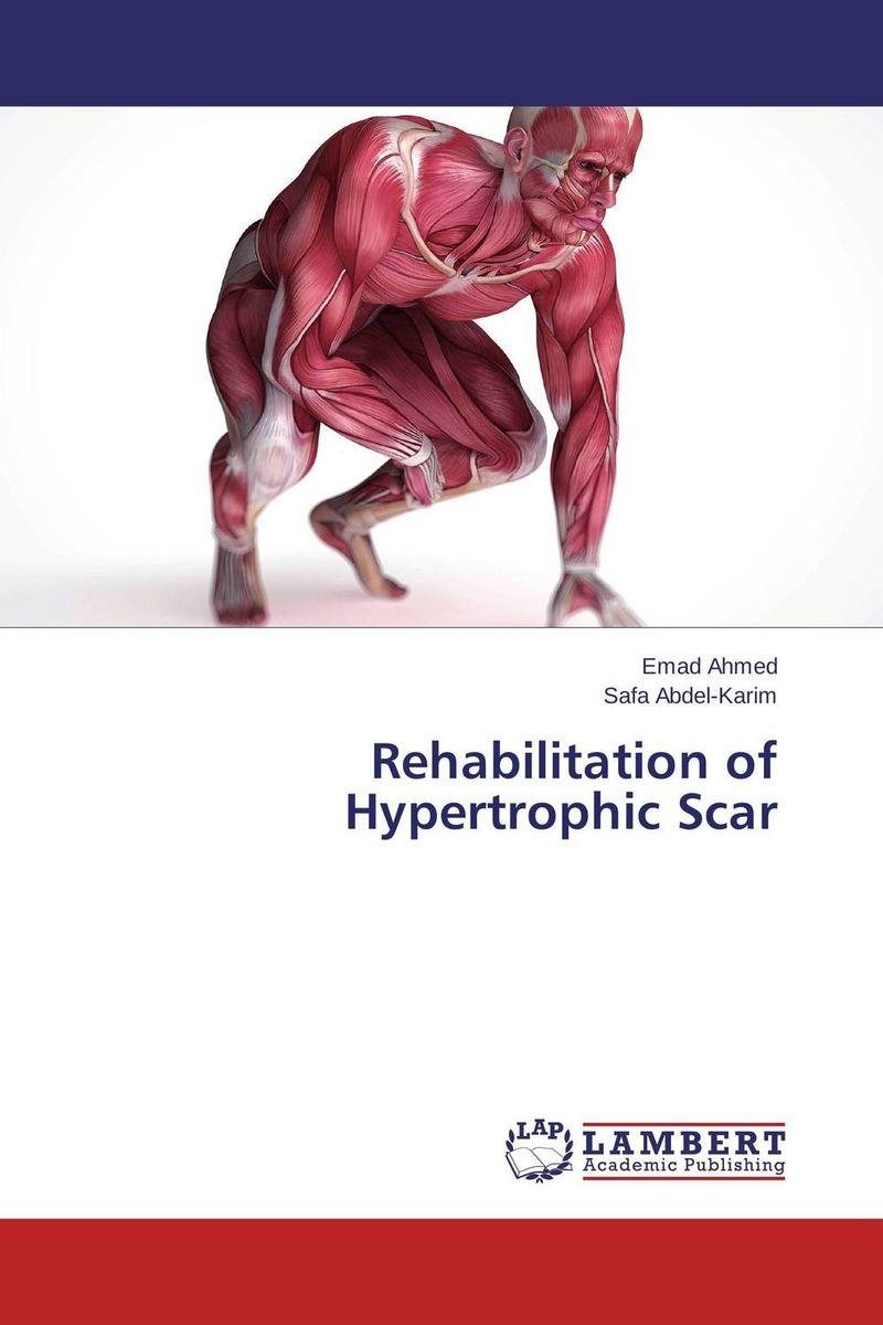 Rehabilitation of Hypertrophic Scar
