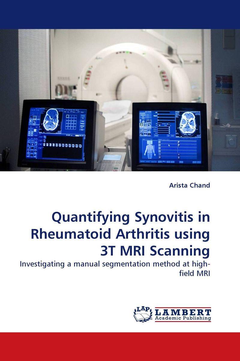 Quantifying Synovitis in Rheumatoid Arthritis using 3T MRI Scanning