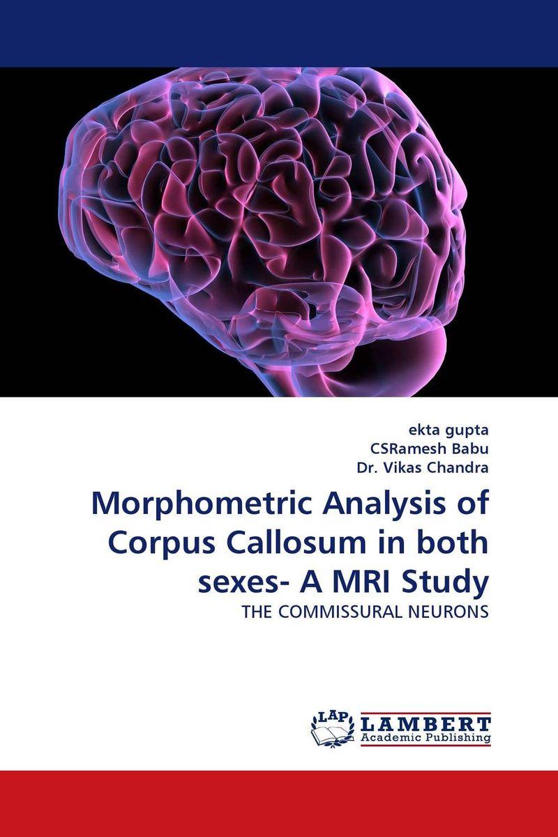 Morphometric Analysis of Corpus Callosum in both sexes- A MRI Study