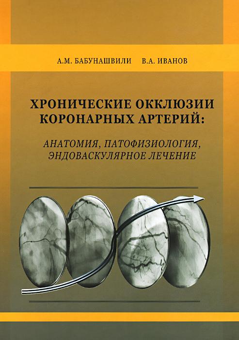 Хронические окклюзии коронарных артерий. Анатомия, патофизиология, эндоваскулярное лечение