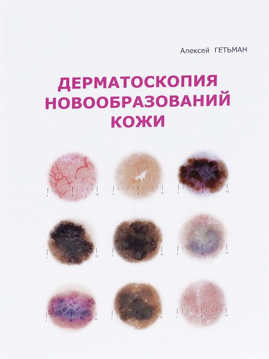 Дерматоскопия новообразований кожи
