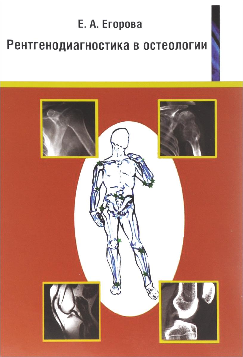Рентгенодиагностика в остеологии. Учебное пособие