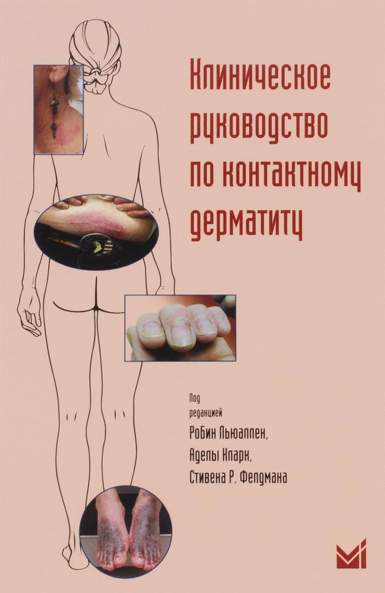 Клиническое руководство по контактному дерматиту. Диагностика и лечение в зависимости от области поражения