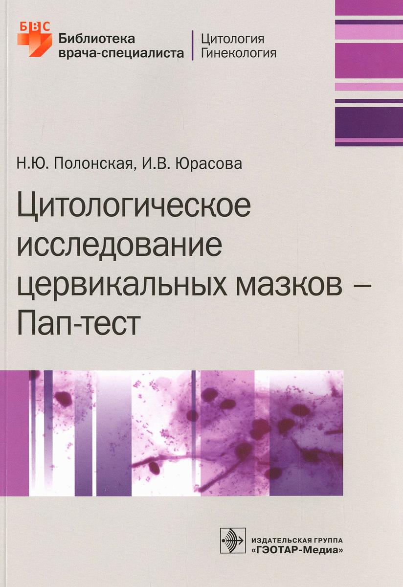 Цитологическое исследование цервикальных мазков - Пап-тест