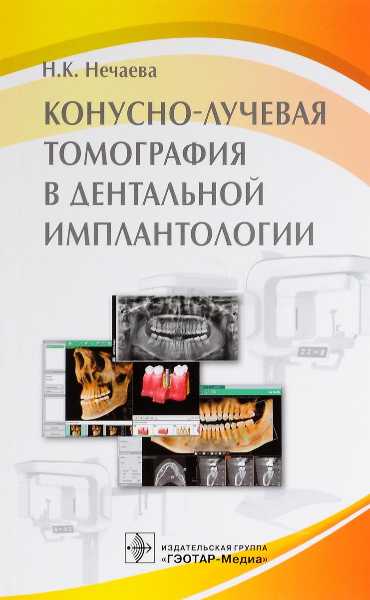 Конусно-лучевая томография в дентальной имплантологии