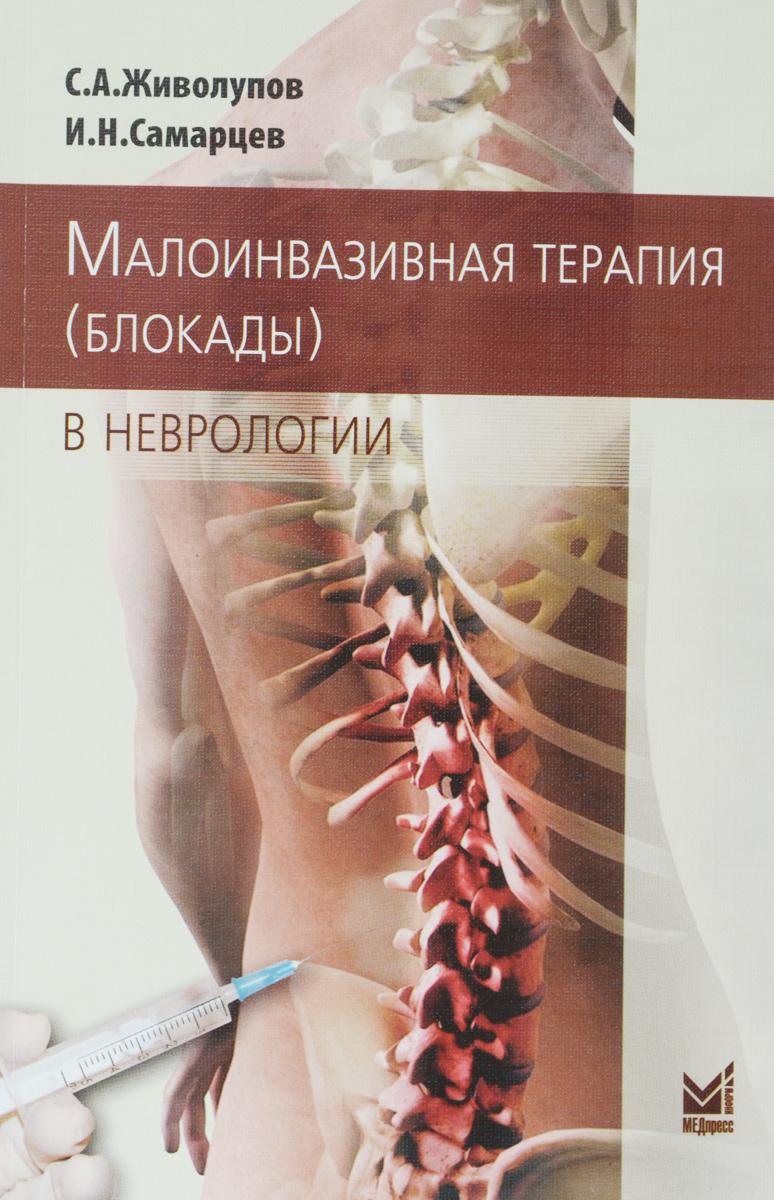 Малоинвазивная терапия (блокады) в неврологии