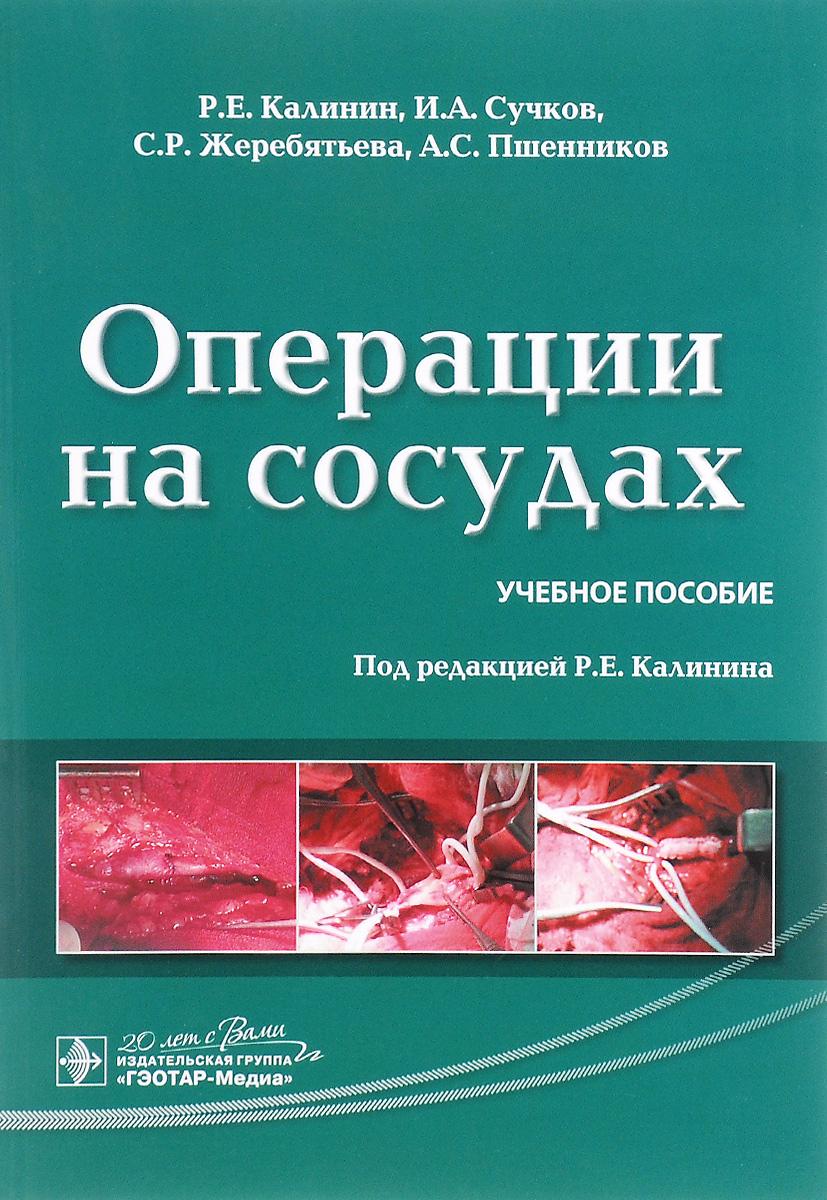 Операции на сосудах. Учебное пособие