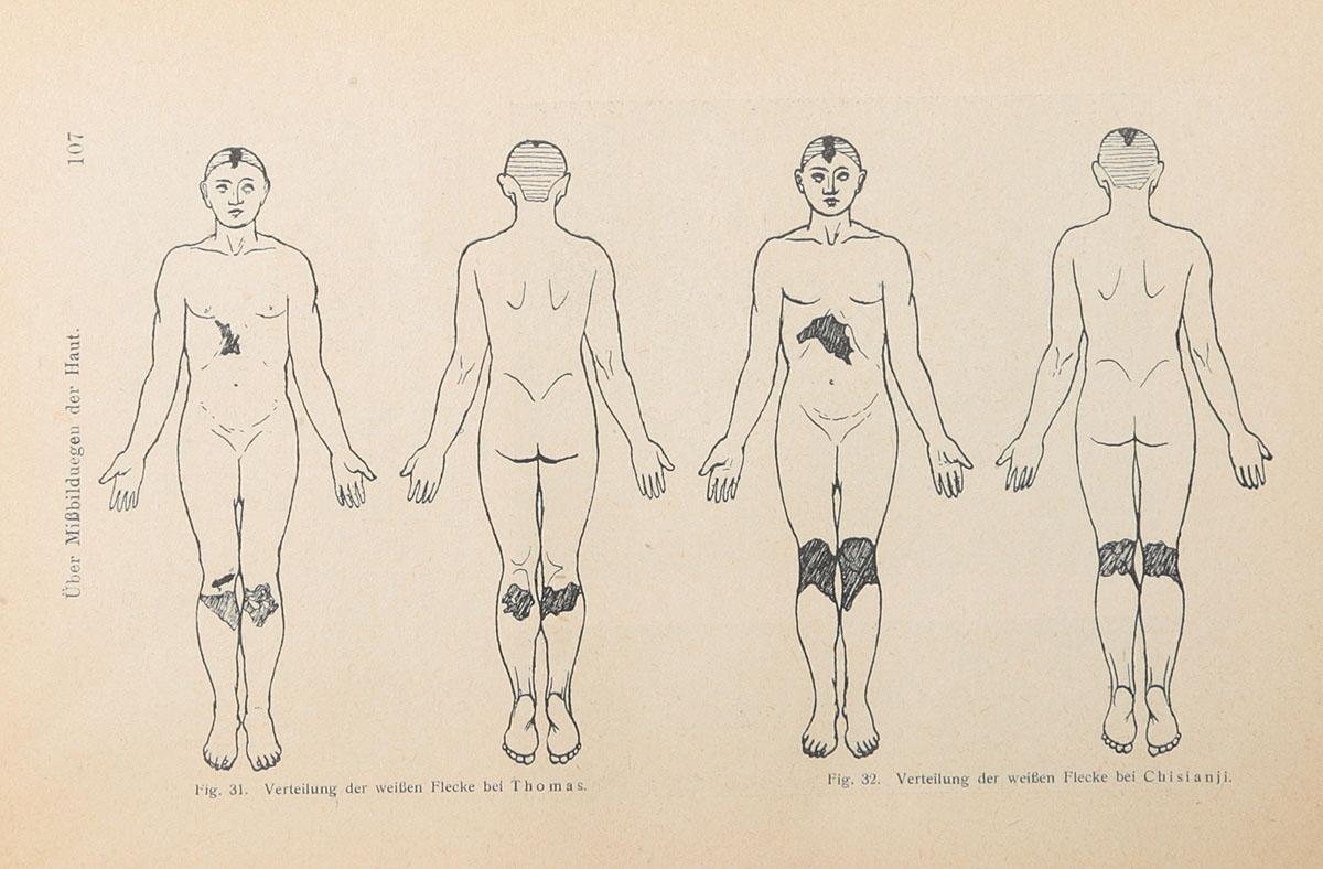 Le biotropisme. Ueber die Entstehung der sogenannten kongenitalen Missbildungen der Haut (конволют)