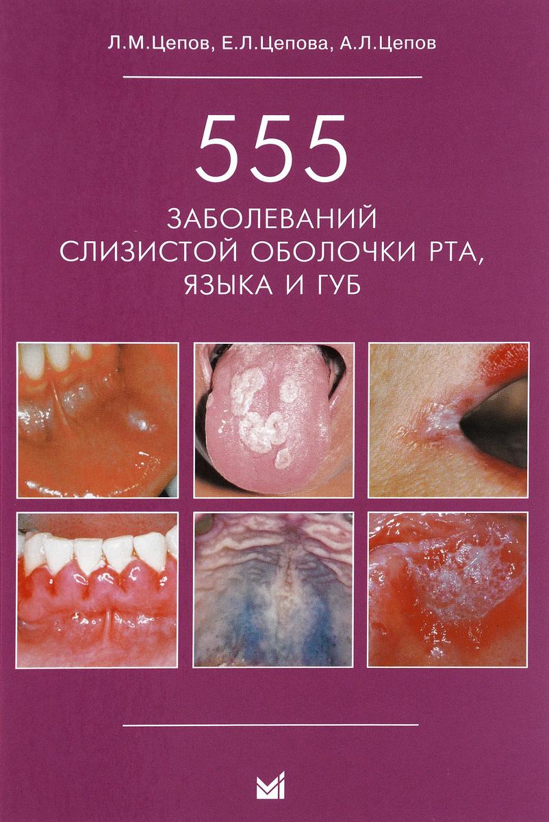 555 заболеваний слизистой оболочки рта, языка и губ