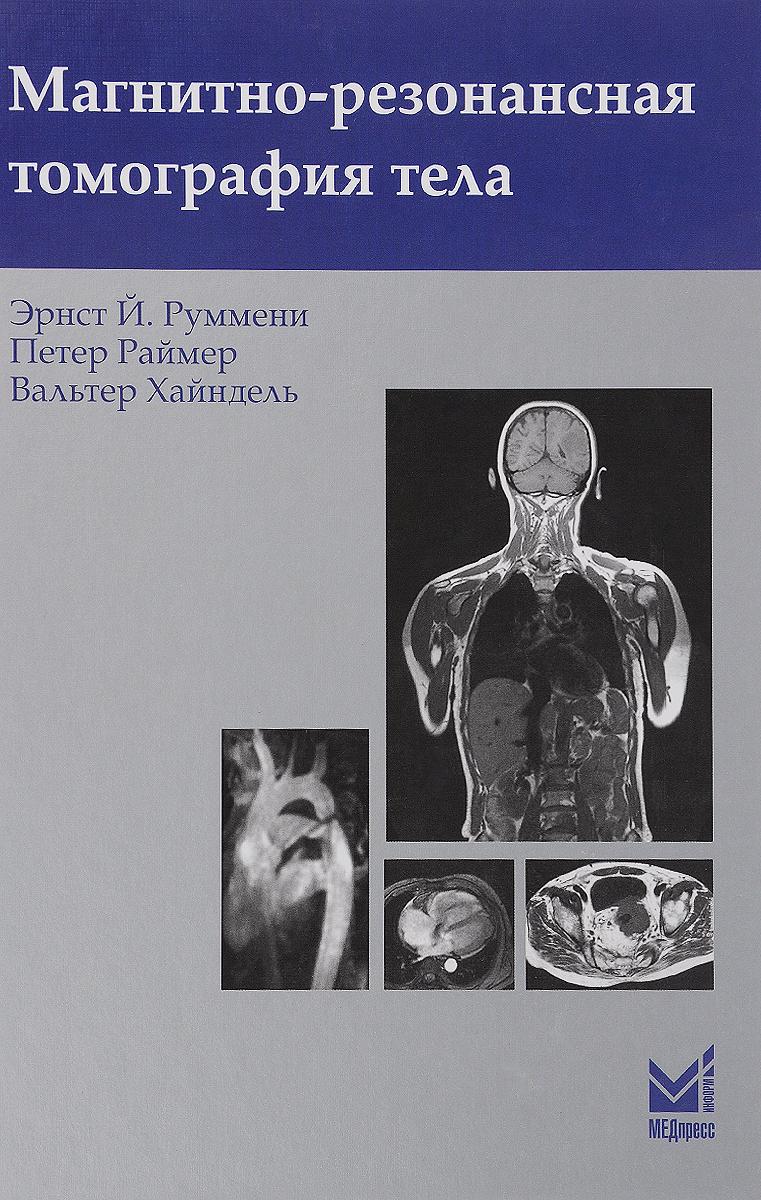 Магнитно-резонансная томография тела