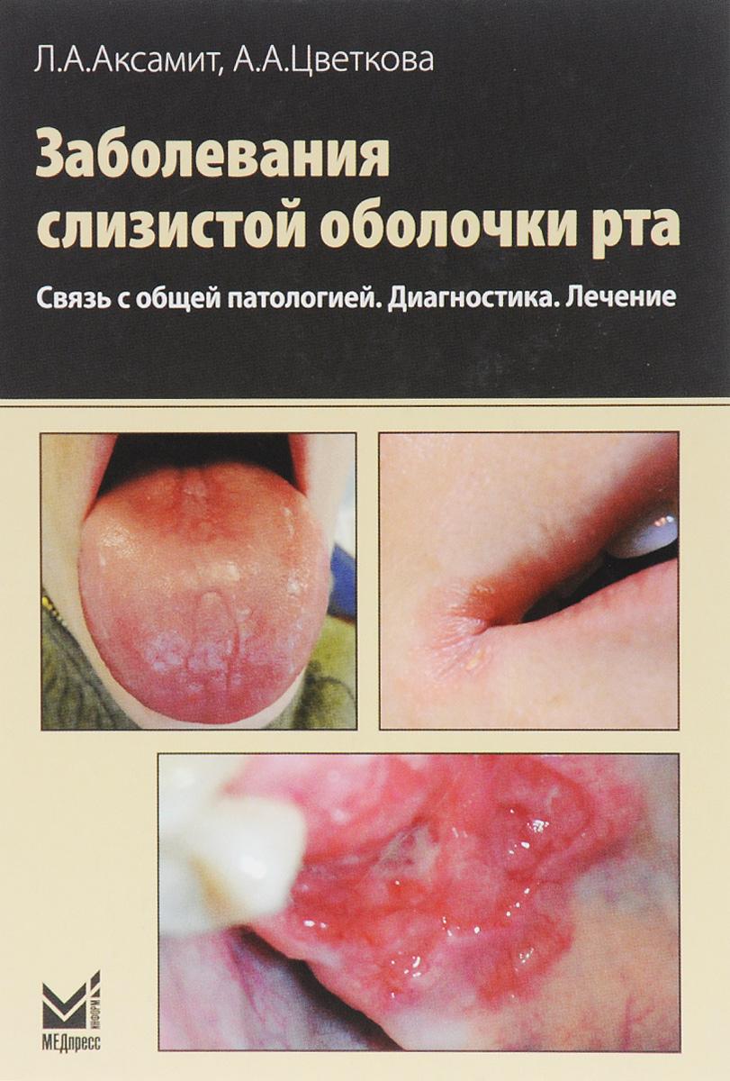 Болезни хирургических болезней зубов