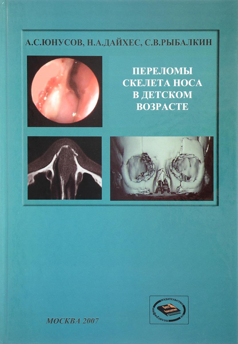 Переломы костей носа в детском возрасте