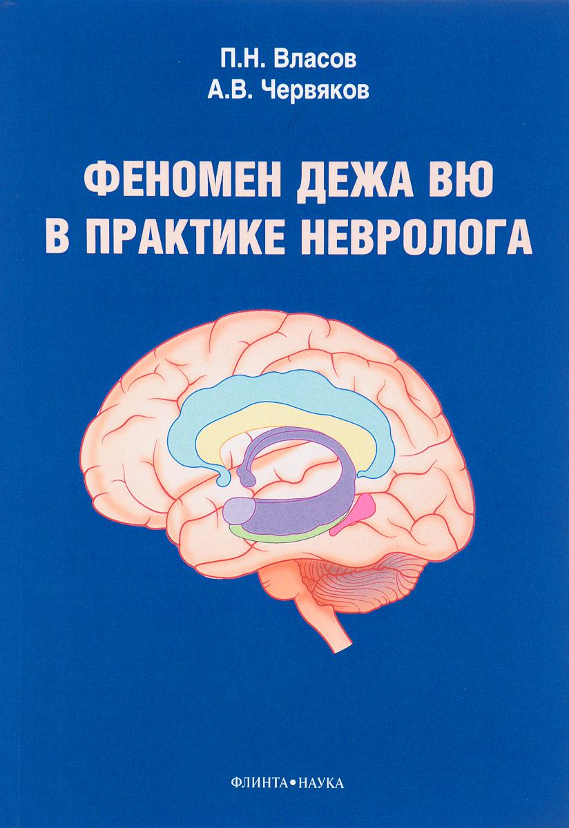 Феномен дежа вю в практике невролога